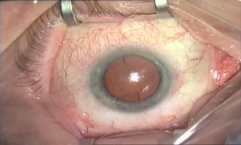 Операция «Глаз»: руки, линза и алмаз. Контрнаступление на катаракту - 5