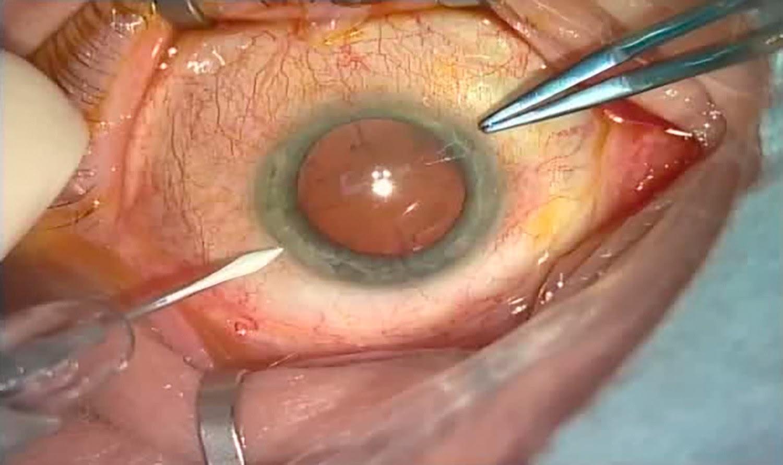 Операция «Глаз»: руки, линза и алмаз. Контрнаступление на катаракту - 8