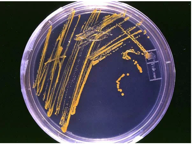 «Вирус Марбурга — пандемия в клетке» - 2