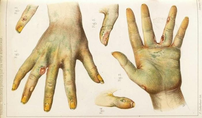 Смертельная палитра: токсикология красителей - 2