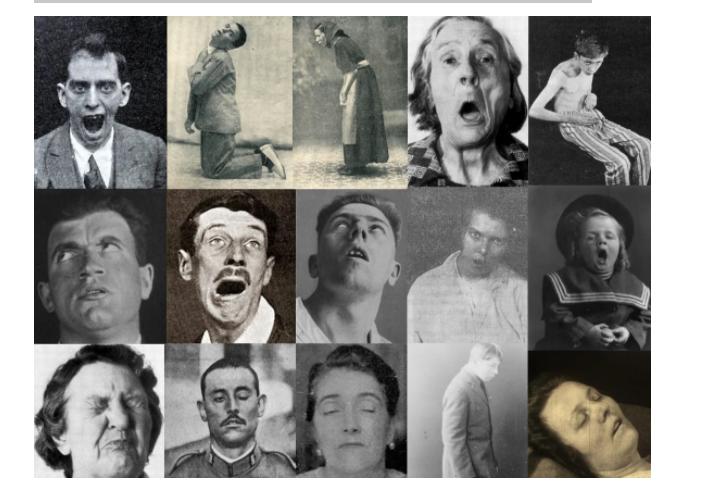Эпидемия летаргии: заснувшие навсегда - 1