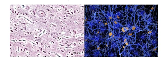 Болезнь Альцгеймера - 12