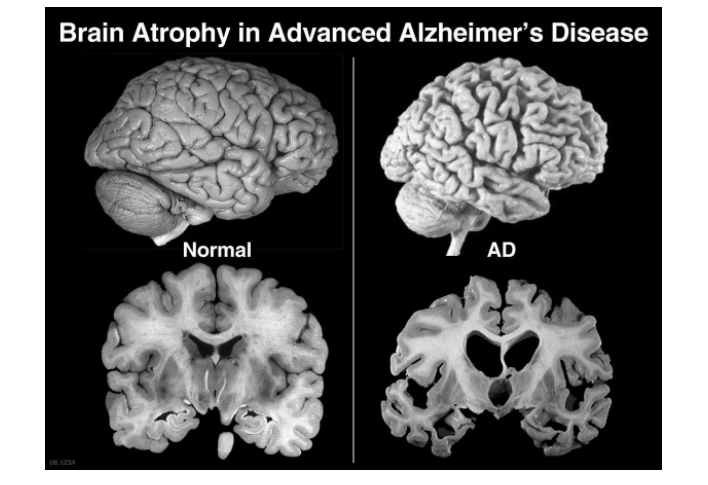 Болезнь Альцгеймера - 3