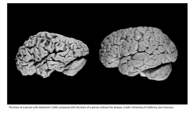 Болезнь Альцгеймера - 1