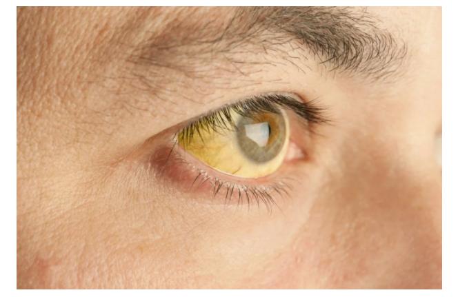 «Красивые глаза» как симптом болезни - 10