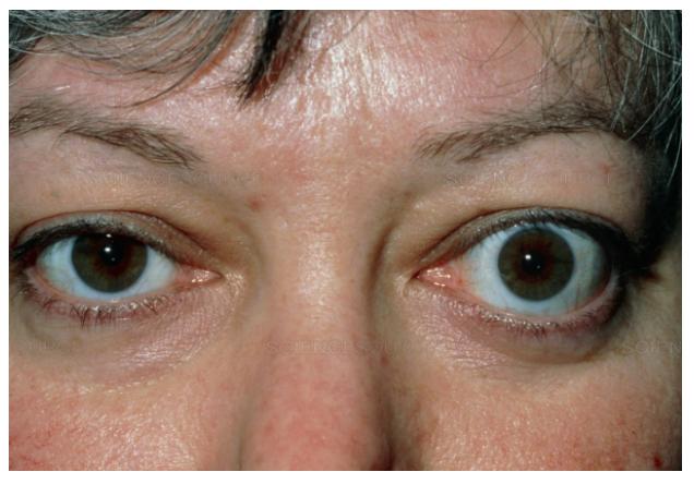 «Красивые глаза» как симптом болезни - 11