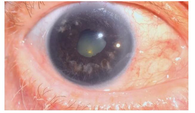 «Красивые глаза» как симптом болезни - 12