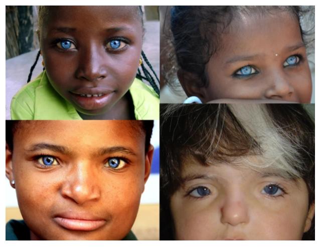 «Красивые глаза» как симптом болезни - 2