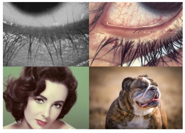 «Красивые глаза» как симптом болезни - 3