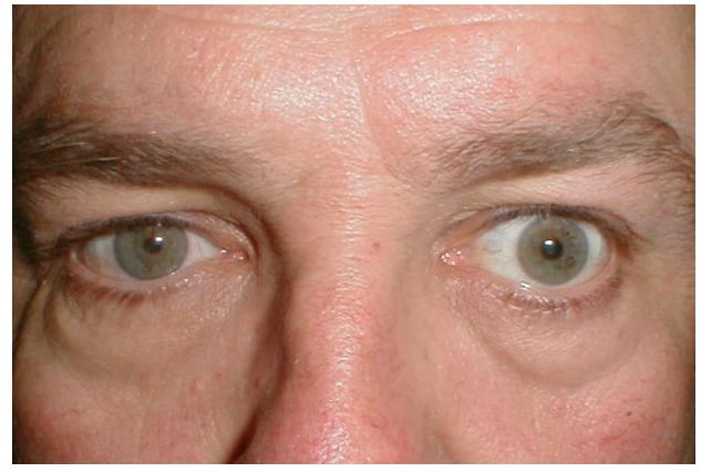 «Красивые глаза» как симптом болезни - 4