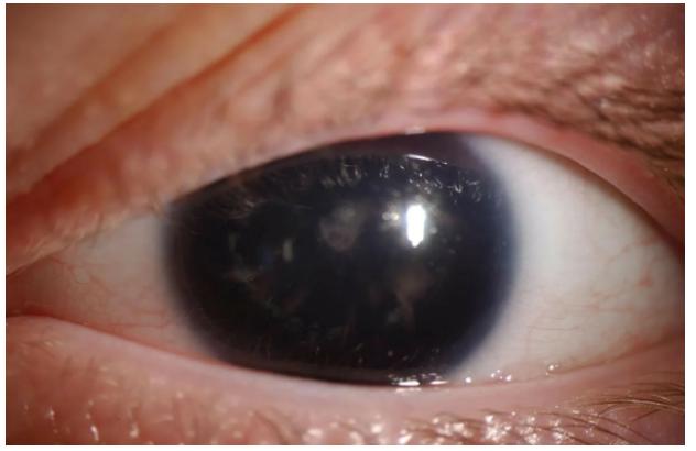 «Красивые глаза» как симптом болезни - 5