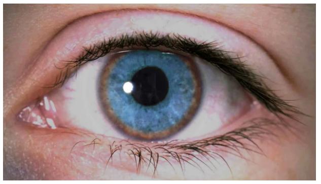 «Красивые глаза» как симптом болезни - 7