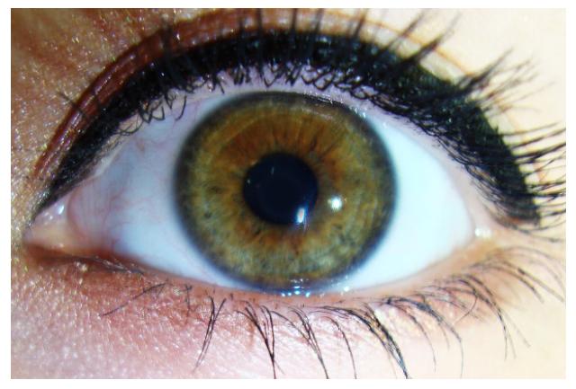 «Красивые глаза» как симптом болезни - 8