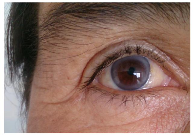 «Красивые глаза» как симптом болезни - 9