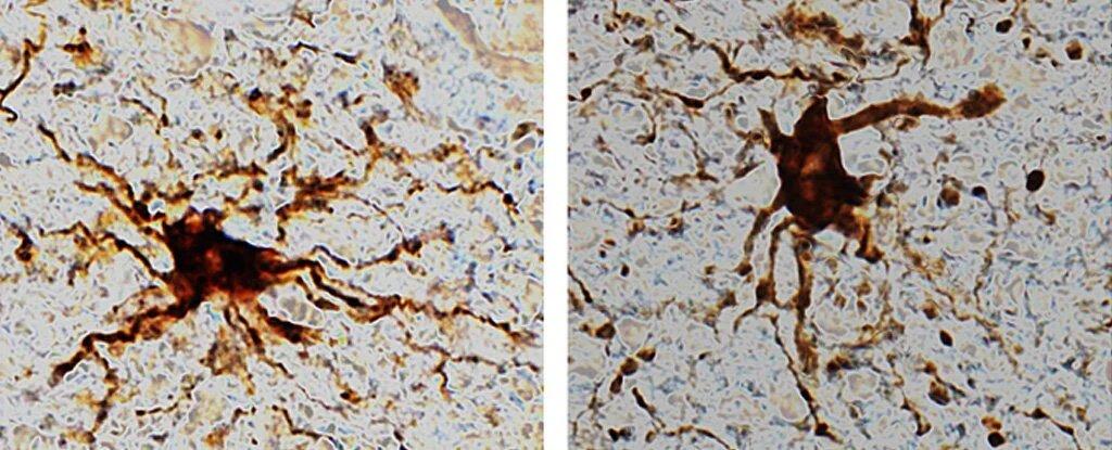 Клетки-зомби, оживающие в мозге человека после смерти - 1
