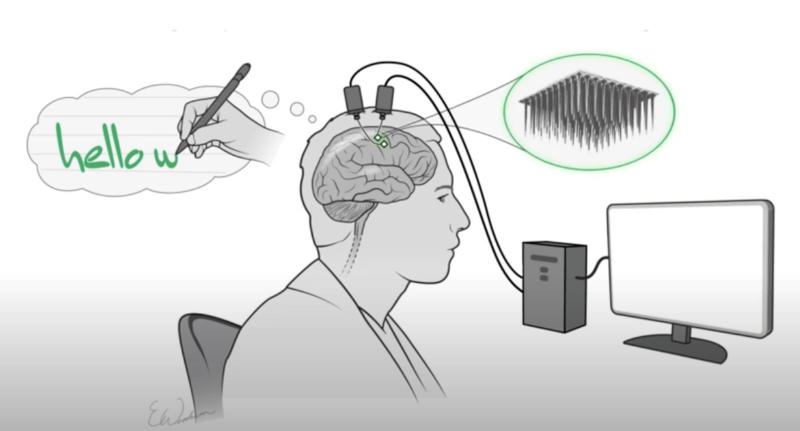 Нейроимплант позволяет парализованному человеку набирать текст на ПК, воображая написание букв на бумаге - 1