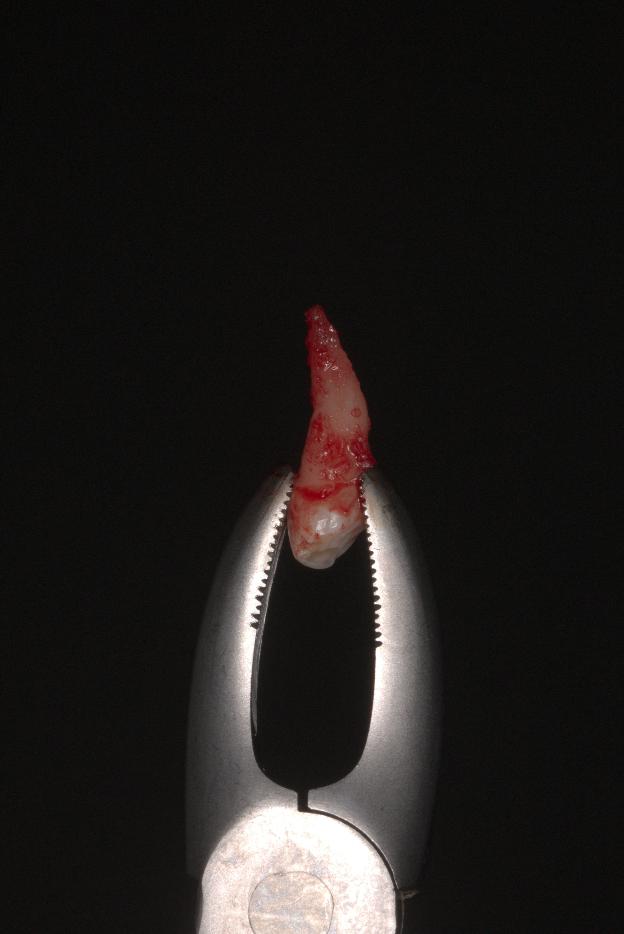 Обратите внимание на красноватые комочки ткани. Их сохранность важна для успешной реплантации.