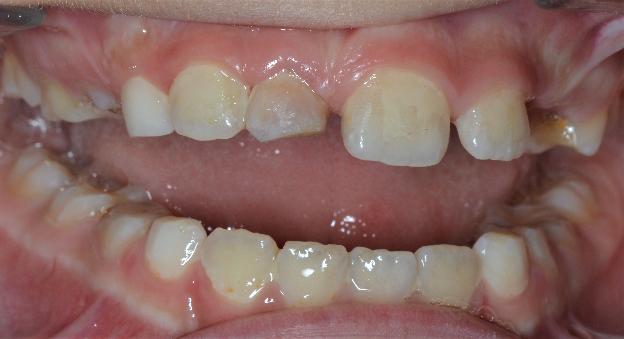 Как правильно собрать зубы в пакетик: реплантация выбитых зубов - 5