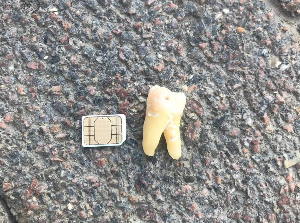 Как правильно собрать зубы в пакетик: реплантация выбитых зубов - 1