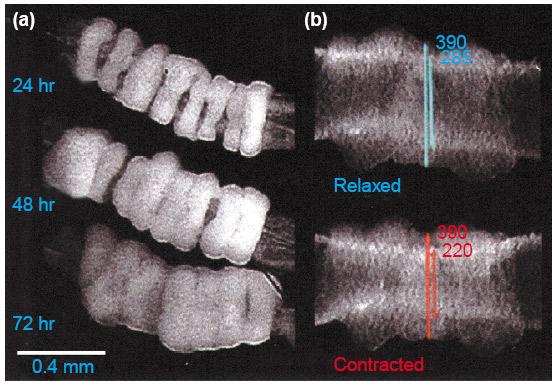 3D печать органов человека