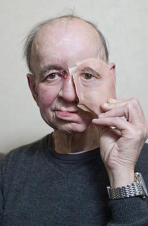Мужчине напечатали часть лица на 3D принтере