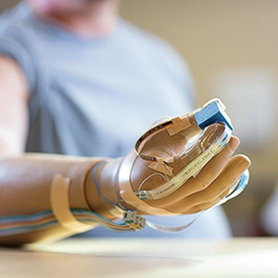 Новый протез руки возвращает ощущение прикосновения