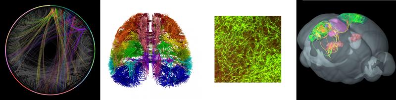 Ученые получили новые снимки работы нейронов мозга
