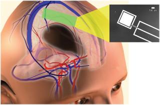 В MIT разработали новый тип топливного элемента для нейроимплантантов