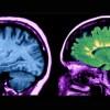 Переустановка иммунной системы. Радикальный новый метод лечения рассеянного склероза доказал свою эффективность