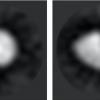 Электронный микроскоп обнаружил, как витамин А попадает в клетки