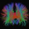 Нейромедиаторы, часть третья: опиоидные пептиды