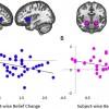 Иллюзии мозга. Эффект обратного действия с точки зрения нейробиологии