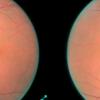 Глубокое обучение и нейронные сети позволяют идентифицировать диабетическую ретинопатию с точностью в 86%