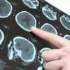 Болезнь Паркинсона можно остановить