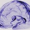 В человеческом мозге нашли лимфатическую систему для удаления отходов