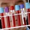 Анализ крови может показать сотрясение мозга