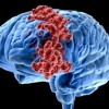 Найдено средство, помогающее при раке мозга
