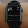 Я врач неотложной помощи, и я хочу поговорить о новой электрокардиограмме Apple Watch