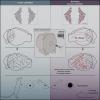 Учёные выяснили, что стресс кардинально меняет работу мозга