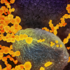Создан самый быстрый тест на коронавирус SARS-CoV-2