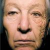 Как ультрафиолет запускает фотолиз прямо в вашей коже