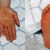 Ретиноиды: кожа станет здоровой, но будете шелушиться
