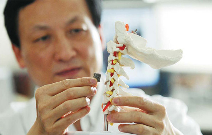 Liu Zhongiun, Director of Orthopedics at Peking University, holding the 3D printed vertebra.