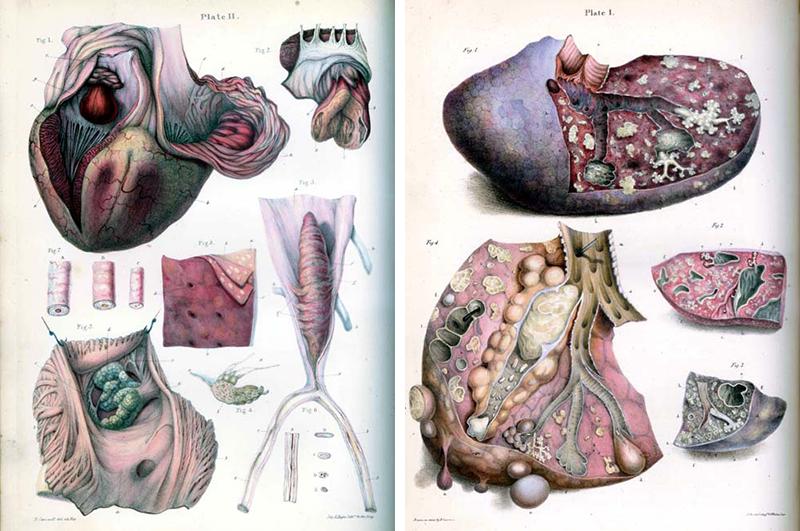 Медицинская анатомическая иллюстрация — история изучения тела человека в атласах 5 столетий. Часть 3