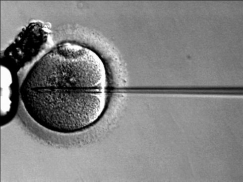 В Индии женщина с мужскими половыми хромосомами родила здоровых близнецов
