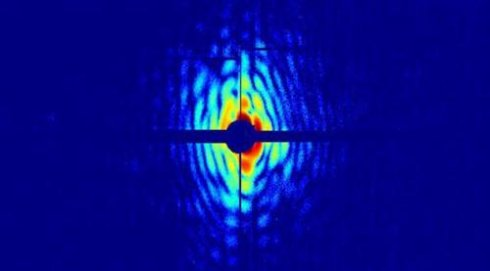 Ученые впервые просветили живую бактерию под рентгеном