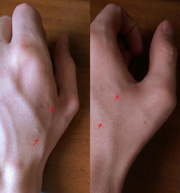 Как я имплантировал RFID себе в руку, а потом еще NFC. Часть 1 - 5