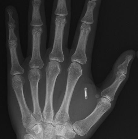 Как я имплантировал RFID себе в руку, а потом еще NFC. Часть 1 - 1