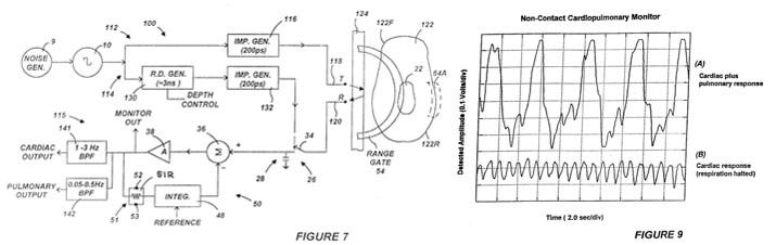 Как умные часы, спортивные трекеры и прочие гаджеты измеряют пульс? Часть 2 - 20