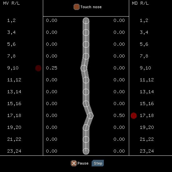 Концепт переноса сознания червя в робота - 4